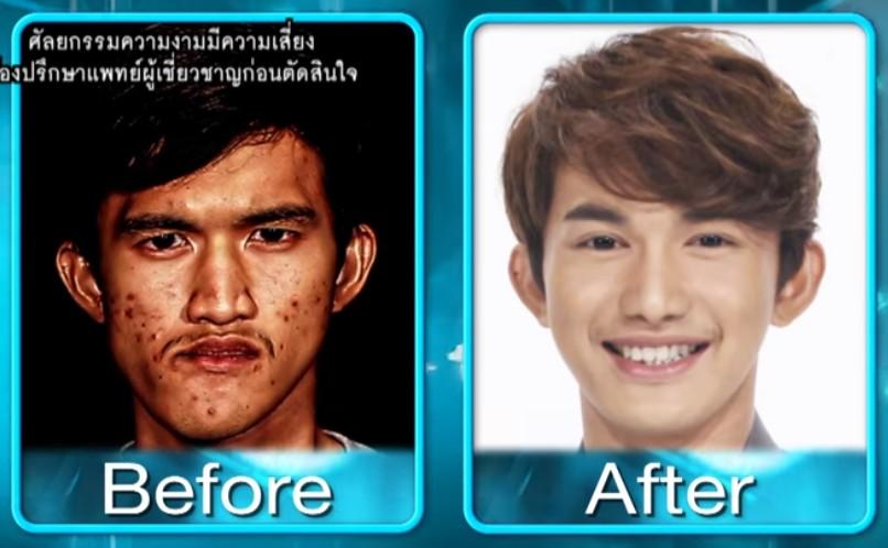 【出典:YouTube】顎の変形に悩まされていた男性、整形後大変身